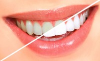 Aagrawal Dental Care Centre